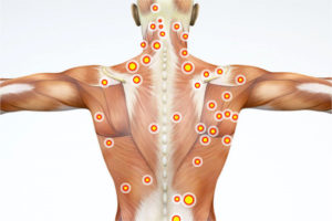 Segmentale Stabilisation der Wirbelsäule